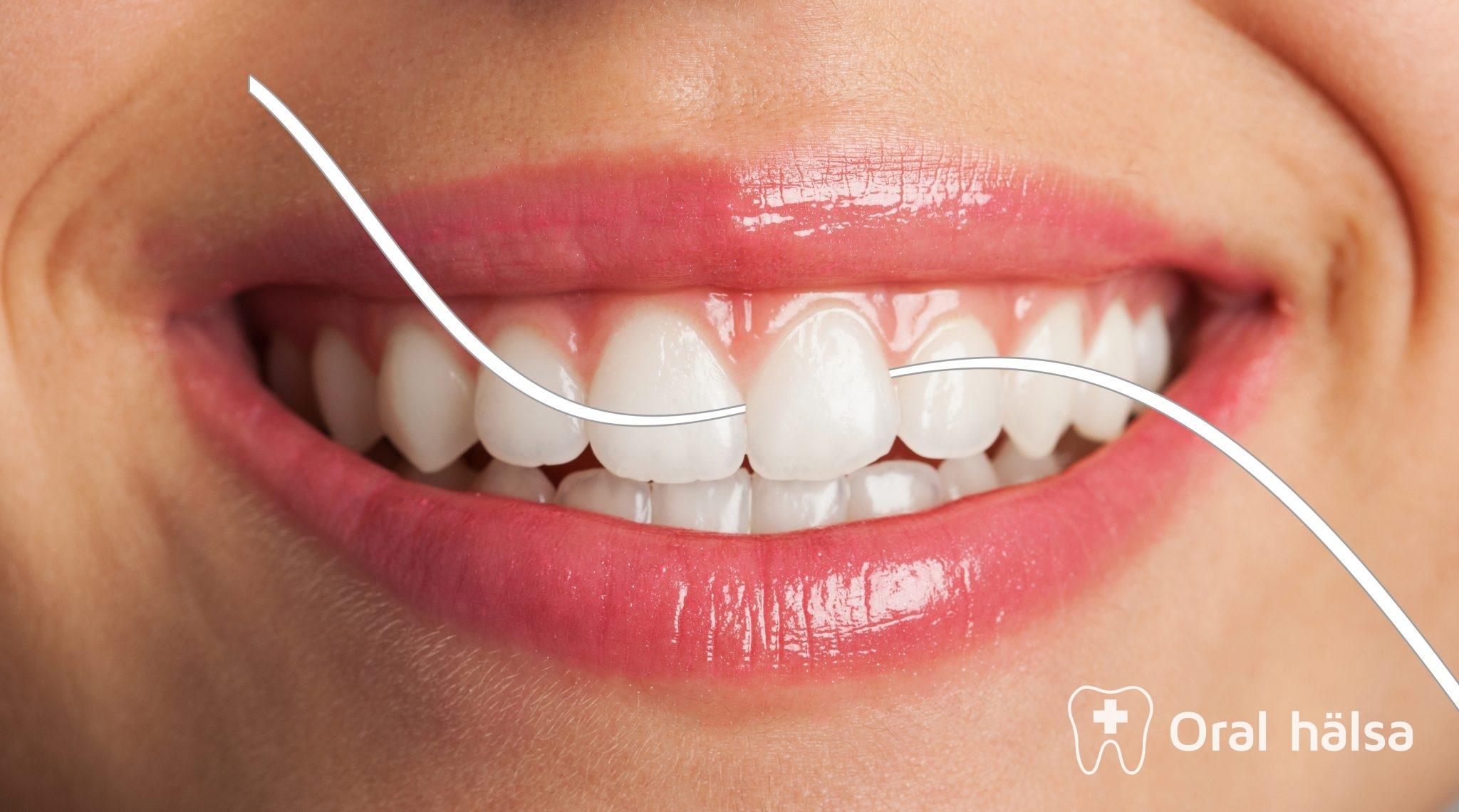 Tandtråd - munhygienhjälpmedel  d2134ecced6cd